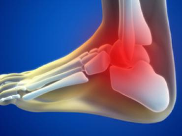 Ankle sprain [twisted ankle]